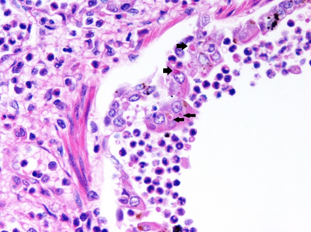 Histopathology of lung with numerous intracytoplasmic viral inclusion bodies